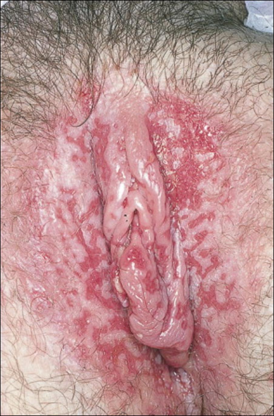 Primo infection herpes genital homme guerison
