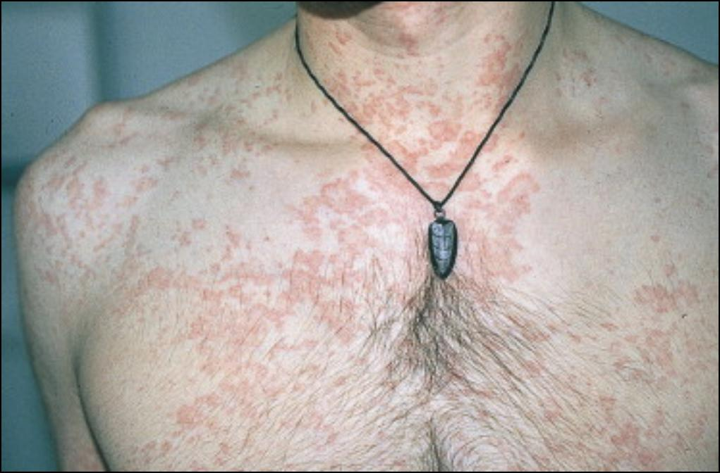 injection site infection steroids